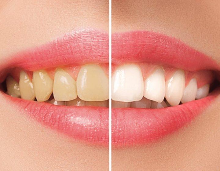 四環素牙-牙齒黃-採用陶瓷貼片的前後比對圖