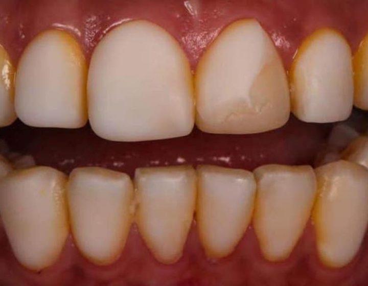 瓷牙貼片後遺症,她們超後悔做樹脂貼片/免磨牙瓷牙貼片