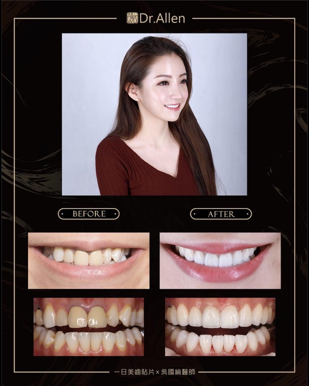 瓷牙貼片心得-齒列不整-門牙牙套邊緣發黑-台中牙齒美白推薦牙醫吳國綸醫師