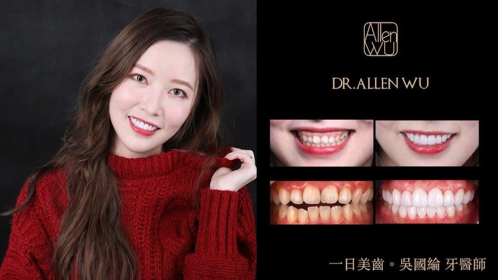瓷牙貼片案例-0003-牙齒美白推薦吳國綸醫師