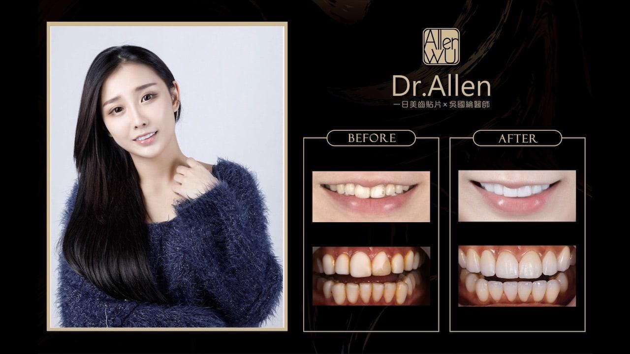 瓷牙貼片-台中牙齒美白貼片推薦牙醫-吳國綸醫師-陶瓷貼片心得