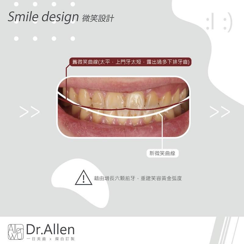 陶瓷貼片-台中牙齒美白貼片推薦牙醫吳國綸醫師-陽光男牙齒黃牙齒比例調整牙齒美白心得-藉由陶瓷貼片美白牙齒並調整上門牙-修正微笑曲線