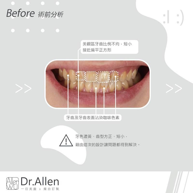 陶瓷貼片-台中牙齒美白貼片推薦牙醫吳國綸醫師-陽光男牙齒黃牙齒比例調整牙齒美白心得-術前牙齒黃-牙齒染色-牙齒短小方正