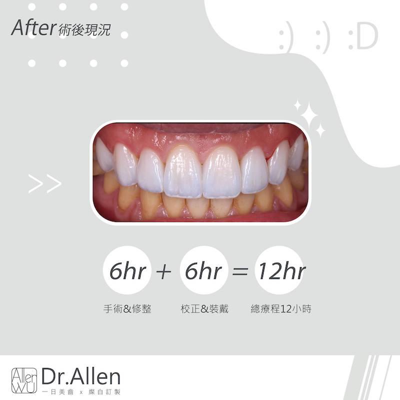 陶瓷貼片-台中牙齒美白貼片推薦牙醫吳國綸醫師-陽光男牙齒黃牙齒比例調整牙齒美白心得-12小時完成-不影響咬合發音下變身陽光型男