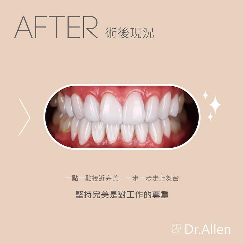 陶瓷貼片-台中牙齒美白貼片推薦-吳國綸醫師-上下排陶瓷貼片讓演唱會完美登場-術後讓Alan在舞台上更完美