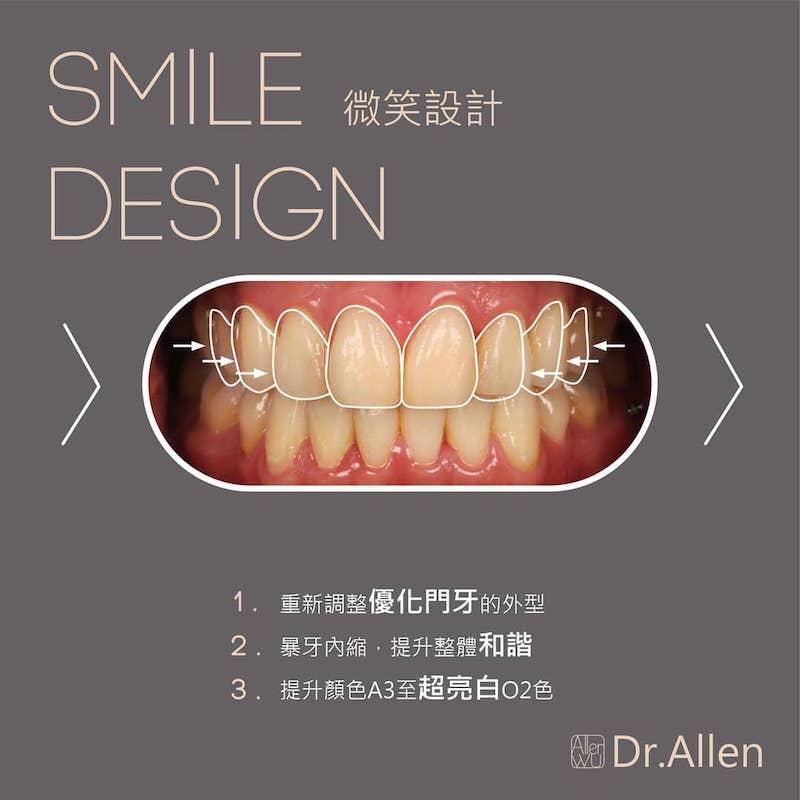 陶瓷貼片-台中牙齒美白貼片推薦-吳國綸醫師-上下排陶瓷貼片讓演唱會完美登場-設計上主要針對上門牙做調整-並提高亮度至O2色階