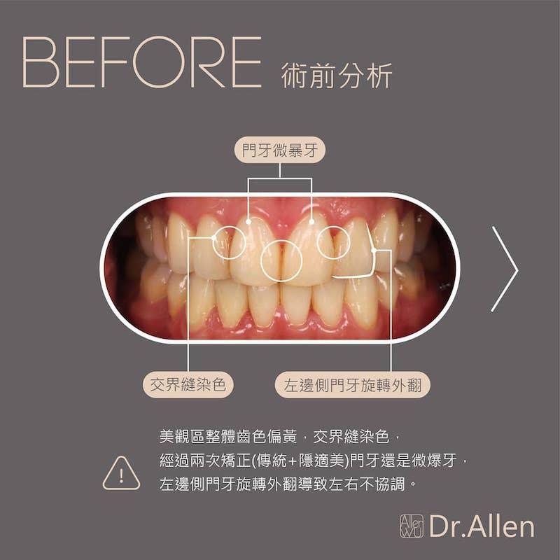陶瓷貼片-台中牙齒美白貼片推薦-吳國綸醫師-上下排陶瓷貼片讓演唱會完美登場-Alan在牙齒矯正後還是有稍微門牙暴牙以及牙縫染色問題