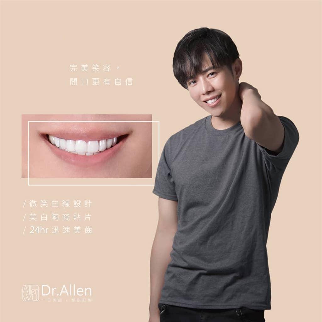 陶瓷貼片-台中牙齒美白貼片推薦-吳國綸醫師-上下排陶瓷貼片讓Alan演唱會完美登場