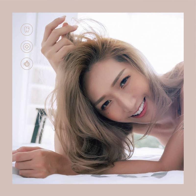 陶瓷貼片-DSD數位微笑設計-療程後患者笑容-1-台中牙齒美白貼片-推薦-吳國綸醫師