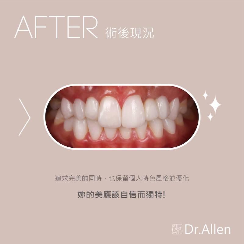 陶瓷貼片-台中牙齒美白貼片推薦-吳國綸醫師-專業模特兒經由數位微笑設計與陶瓷貼片成為完美女神-術後