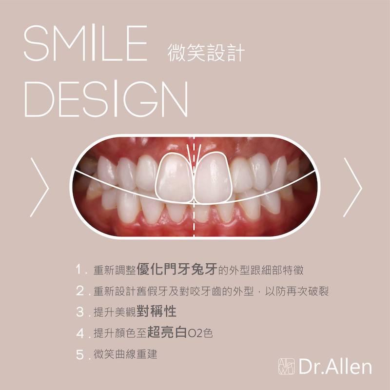 陶瓷貼片-台中牙齒美白貼片推薦-吳國綸醫師-專業模特兒經由數位微笑設計與陶瓷貼片成為完美女神-透過數位微笑設計調整門牙比例與對稱-重建微笑曲線-並提高牙齒亮度至O2等級