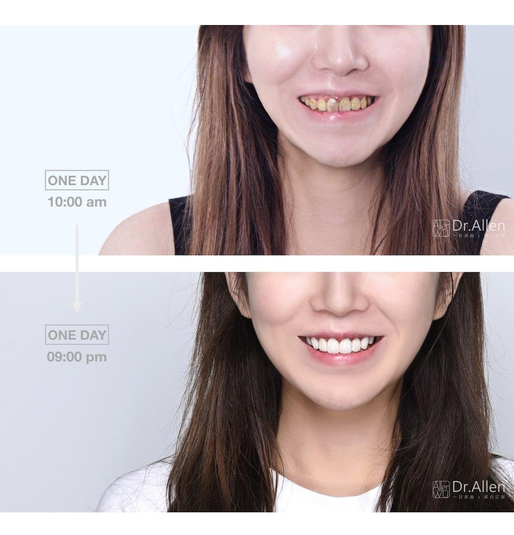 陶瓷貼片-推薦-台中牙齒美白-吳國綸醫師-瓷牙貼片一日美齒-牙齒美白貼片前後比較