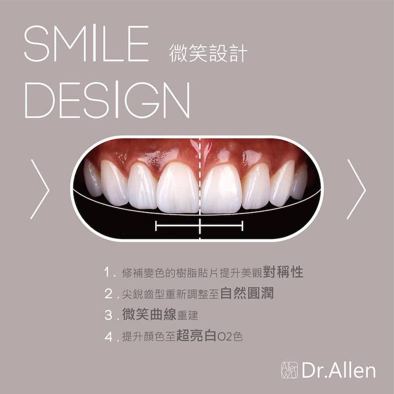 陶瓷貼片-樹脂補牙變色-牙齒黃-台中牙齒美白貼片推薦-吳國綸醫師-陶瓷貼片療程-讓姐不再需要牙齒美白濾鏡-在DSD數位微笑設計階段-調整齒型與微笑曲線-牙齒美白至超亮白
