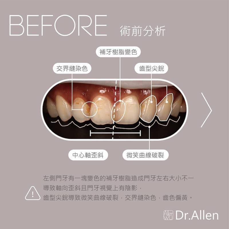 陶瓷貼片-樹脂補牙變色-牙齒黃-台中牙齒美白貼片推薦-吳國綸醫師-陶瓷貼片療程-讓姐不再需要牙齒美白濾鏡-術前有樹脂補牙處變色-齒型尖銳微笑曲線破裂-與常見的牙齒黃問題