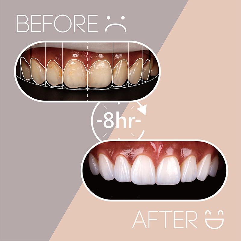 陶瓷貼片-樹脂補牙變色-牙齒黃-台中牙齒美白貼片推薦-吳國綸醫師-陶瓷貼片療程-讓姐不再需要牙齒美白濾鏡-8小時療程前後牙齒比較