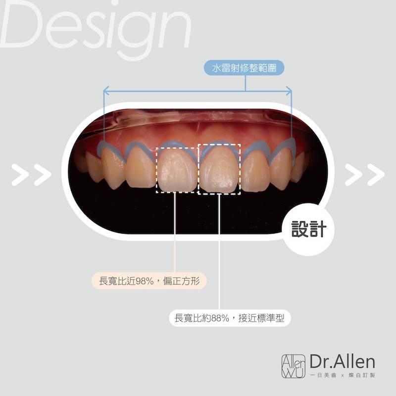 陶瓷貼片-笑露牙齦-牙冠增長術-陶瓷貼片療程中-台中-吳國綸醫師