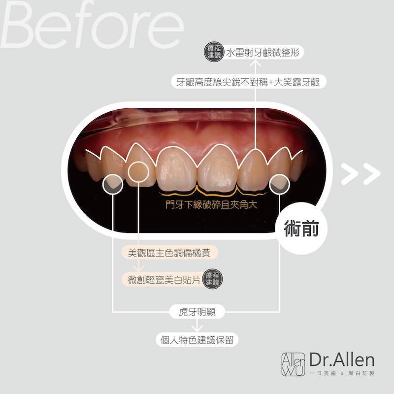 陶瓷貼片-牙齒矯正後牙齒黃-笑露牙齦-陶瓷貼片療程前-台中-吳國綸醫師