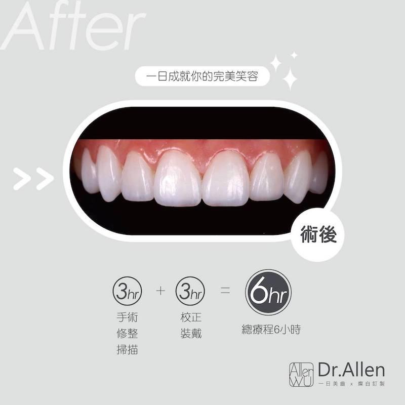 陶瓷貼片-DSD微笑設計-牙冠增長術-陶瓷貼片療程後-台中-吳國綸醫師