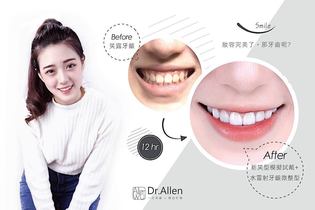 陶瓷貼片-牙齒黃-牙冠增長術-牙齒美白推薦-台中-吳國綸醫師