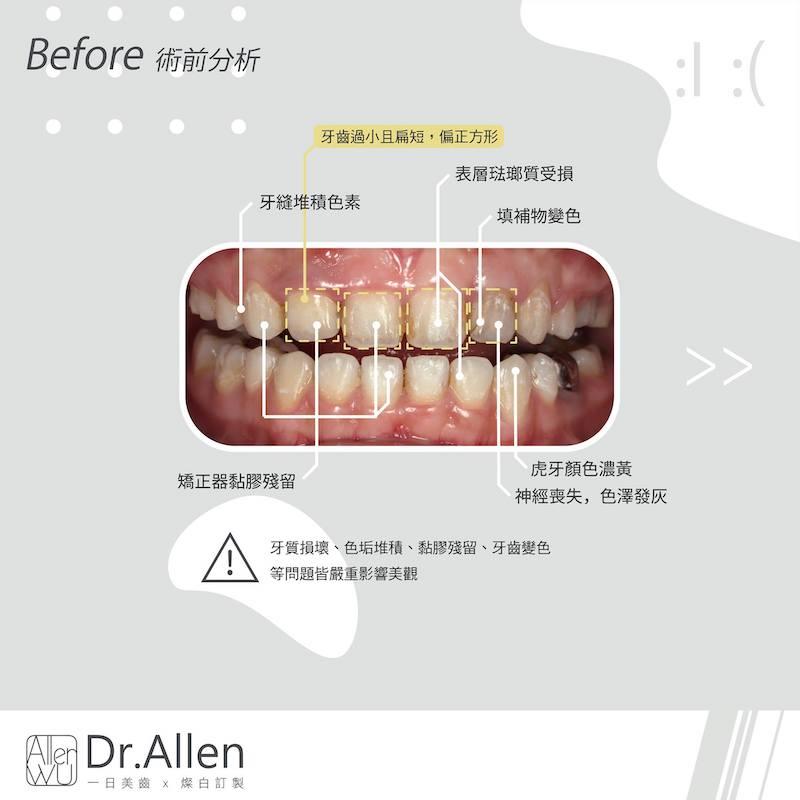 瓷牙貼片-牙齦微整型-牙齒矯正後美白-陶瓷貼片療程前-牙齒黃-牙齒短-笑露牙齦-陶瓷貼片-台中-吳國綸醫師