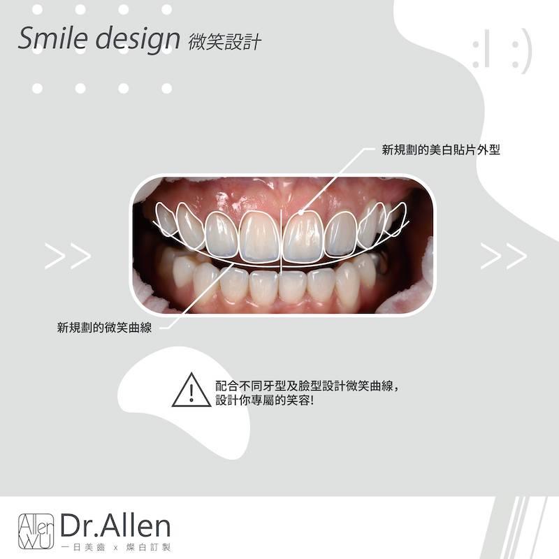 瓷牙貼片-牙齦微整型-牙齒矯正後美白-陶瓷貼片療程中-DSD微笑設計-陶瓷貼片-台中-吳國綸醫師