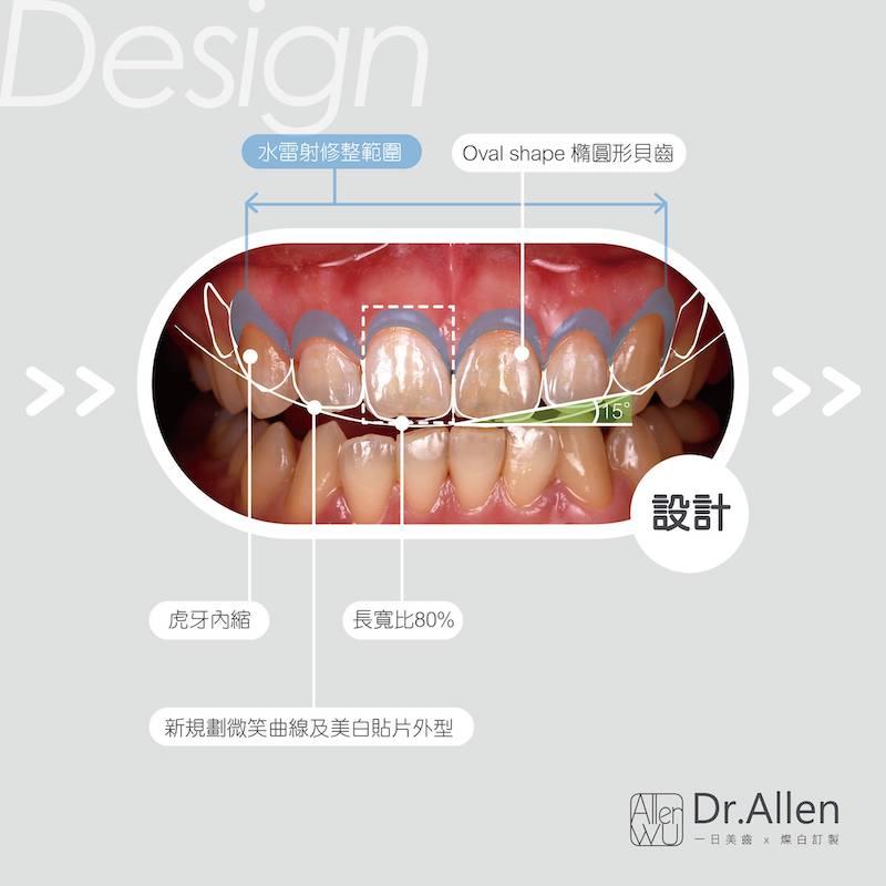 陶瓷貼片-水雷射-牙齦整形-笑露牙齦-牙齒黃-微笑設計-吳國綸醫師-台中