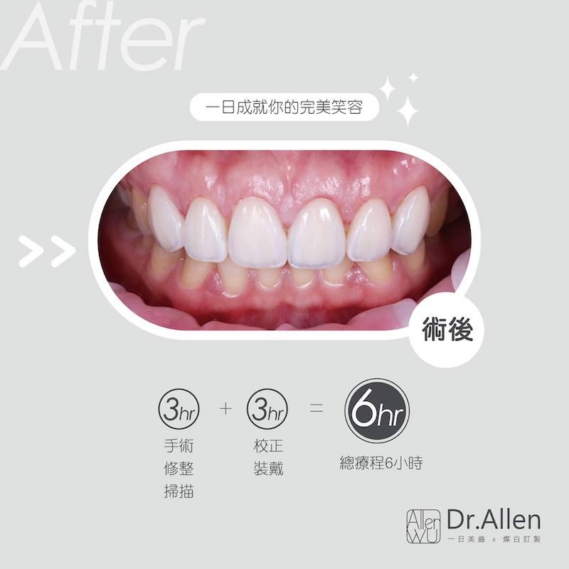 陶瓷貼片-水雷射-牙齦整形-笑露牙齦-牙齒黃-療程後-吳國綸醫師-台中