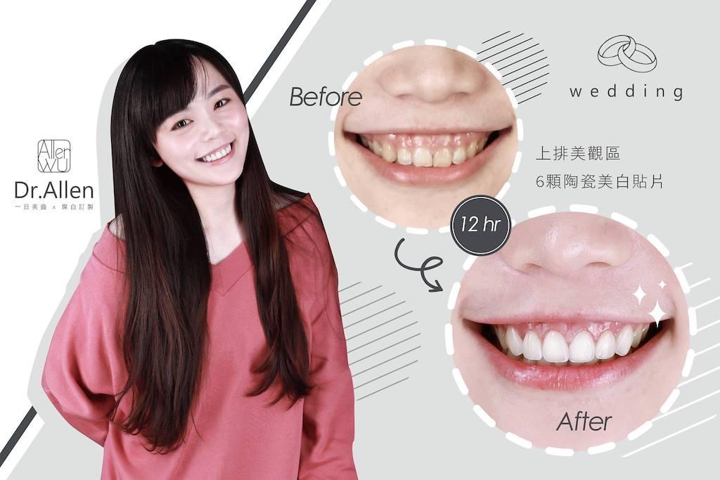 陶瓷貼片-水雷射-牙齦整形-笑露牙齦-牙齒黃-台中牙齒美白貼片推薦-吳國綸醫師