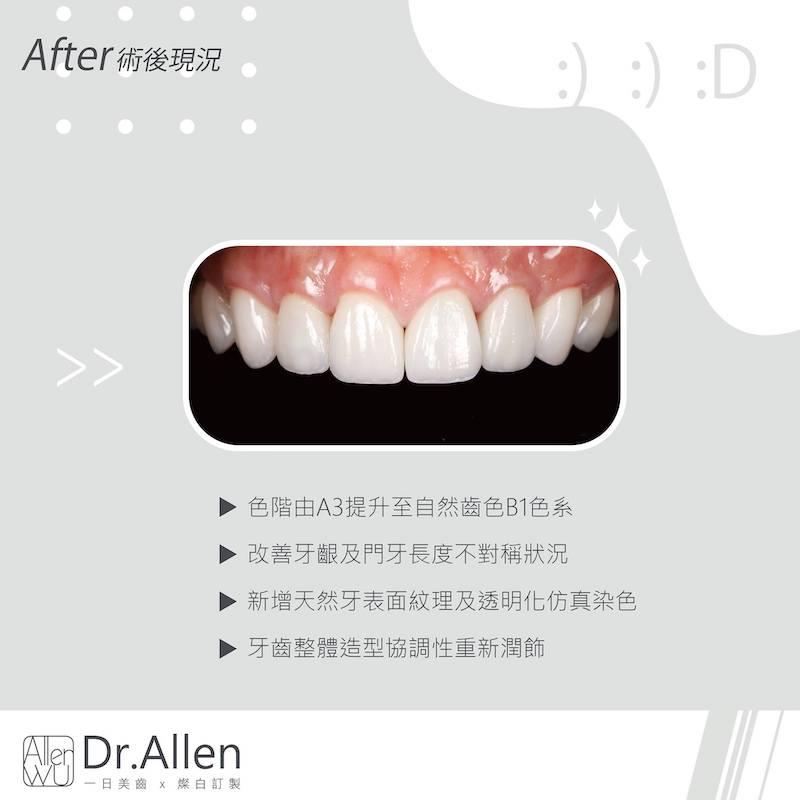 陶瓷貼片-舊牙齒貼片破裂牙齒染色-台中牙齒美白貼片推薦-吳國綸醫師-全新美白陶瓷貼片色階提升且自然-並修正牙齦與門牙長度帶來完美笑容
