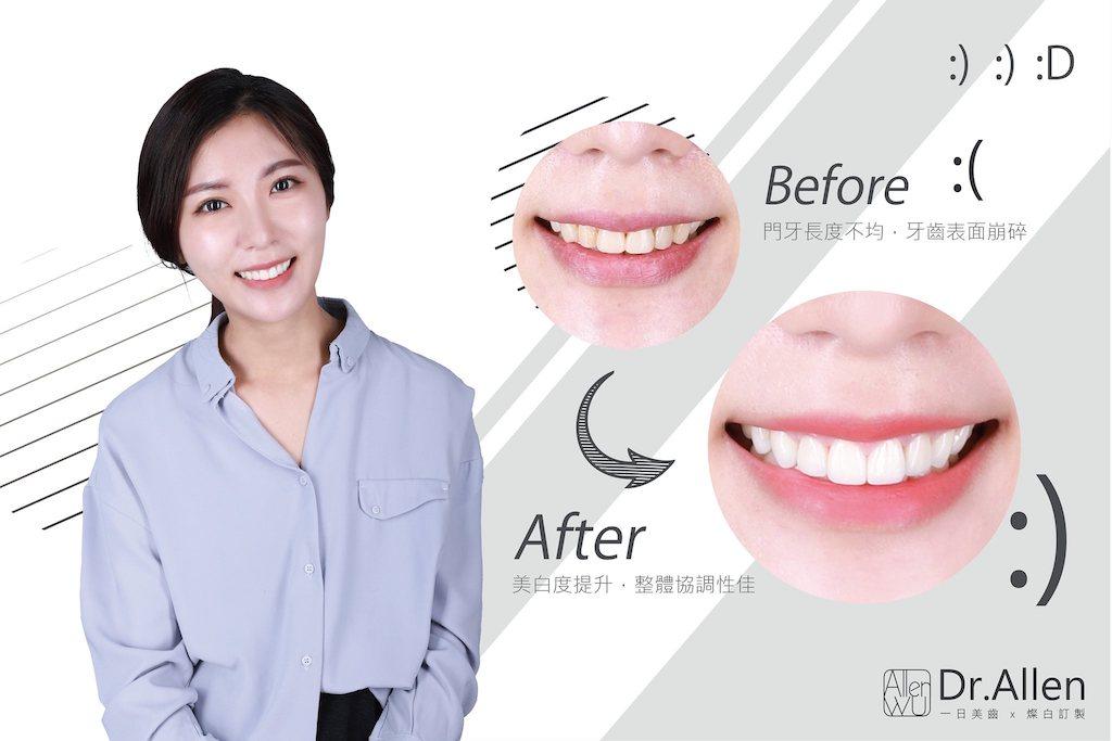 陶瓷貼片-舊牙齒貼片破裂牙齒染色-台中牙齒美白貼片推薦-吳國綸醫師-更換破損貼片並修正笑容曲線心得