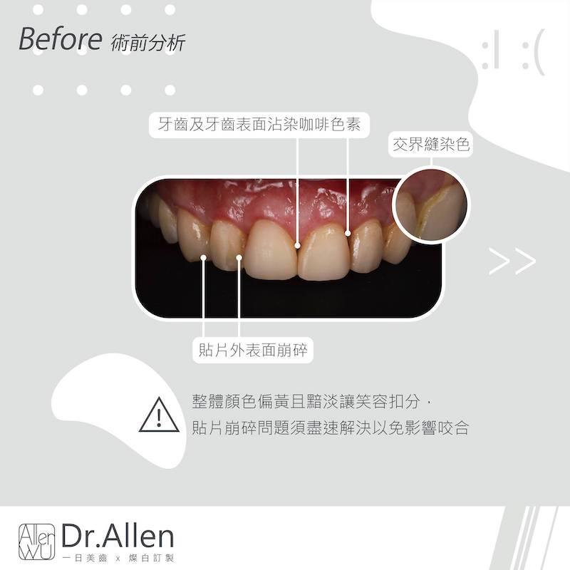 陶瓷貼片-舊牙齒貼片破裂牙齒染色-台中牙齒美白貼片推薦-吳國綸醫師-舊牙齒貼片表面破損-牙縫染色-色素沈澱問題