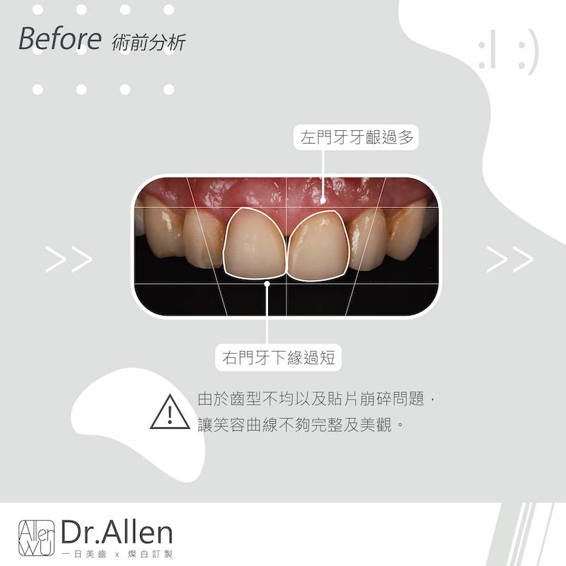 陶瓷貼片-舊牙齒貼片破裂牙齒染色-台中牙齒美白貼片推薦-吳國綸醫師-除了拆除破裂貼片外-同時用數位微笑設計修正笑容曲線