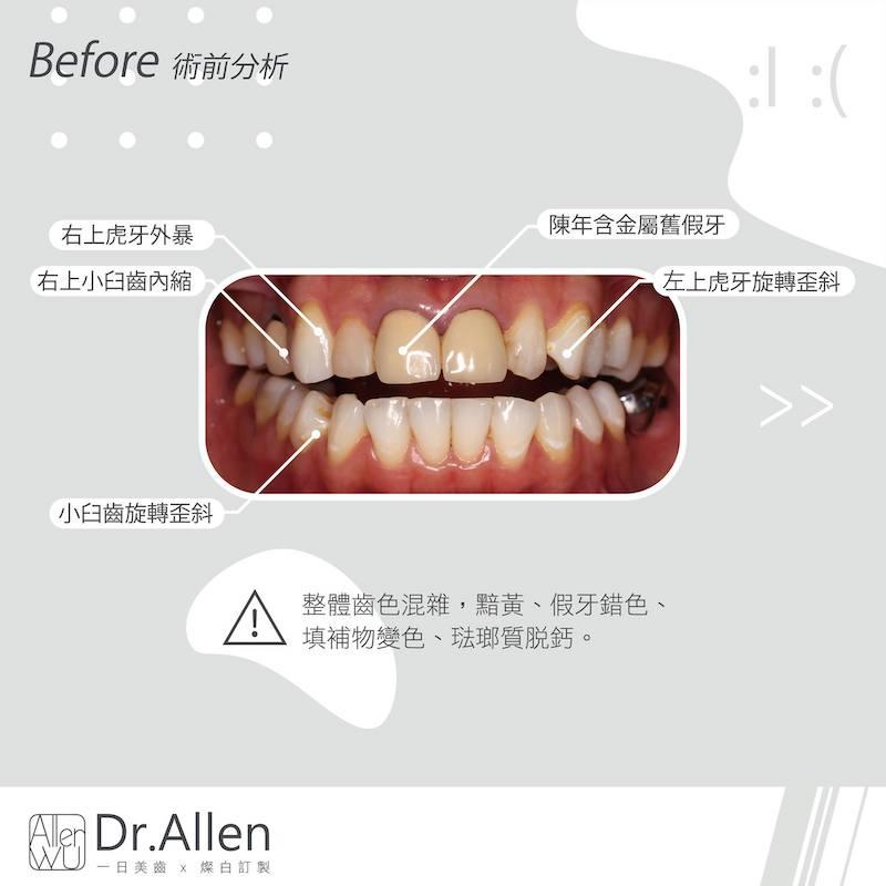 陶瓷貼片-門牙假牙牙套發黑-DSD數位微笑設計-台中牙齒美白貼片推薦-吳國綸醫師-活力正妹牙齒美白心得-術前門牙假牙變色發黑-並有輕微齒列不正與琺瑯質脫鈣