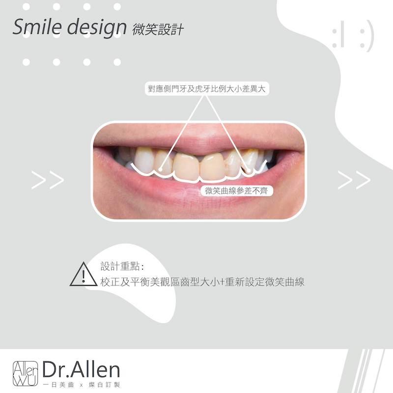 陶瓷貼片-門牙假牙牙套發黑-DSD數位微笑設計-台中牙齒美白貼片推薦-吳國綸醫師-活力正妹牙齒美白心得-設計重點為微笑曲線修正與齒形調整