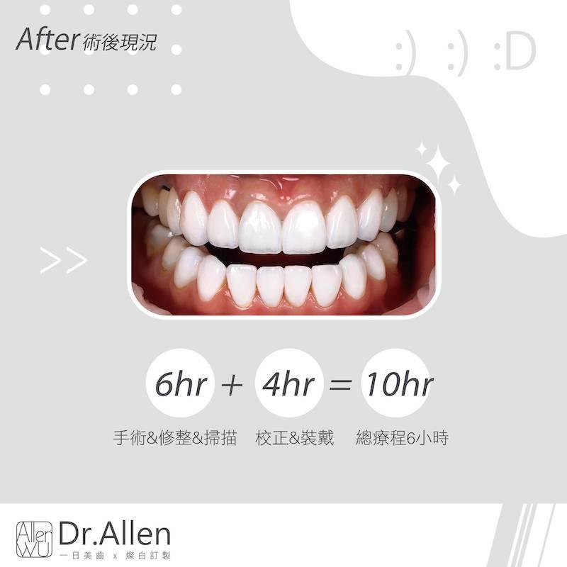 陶瓷貼片-門牙假牙牙套發黑-DSD數位微笑設計-台中牙齒美白貼片推薦-吳國綸醫師-活力正妹牙齒美白心得-6小時的療程與4小時裝戴校正-當日完成