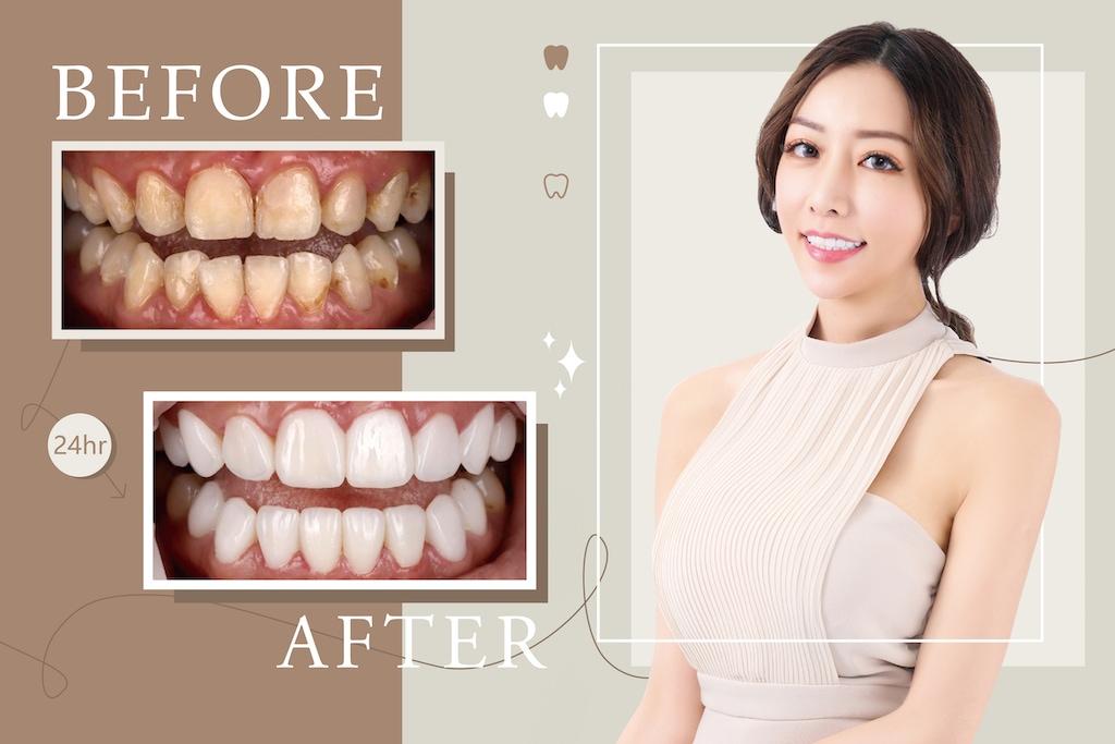 美白齒雕-牙齒貼片失敗-台中陶瓷貼片-推薦-吳國綸醫師