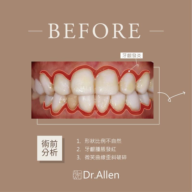美白齒雕-牙齒貼片失敗-陶瓷貼片療程前-牙齦發炎-微笑曲線破碎-吳國綸醫師-台中