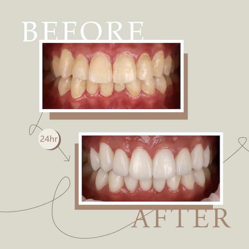 陶瓷貼片-牙齒不整齊-牙齒黃-美齒貼片前後比較-吳國綸醫師-台中