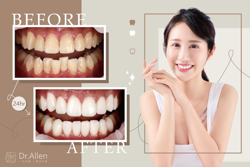 陶瓷貼片-牙齒不整齊-牙齒黃-美齒貼片-牙齒貼片推薦-吳國綸醫師
