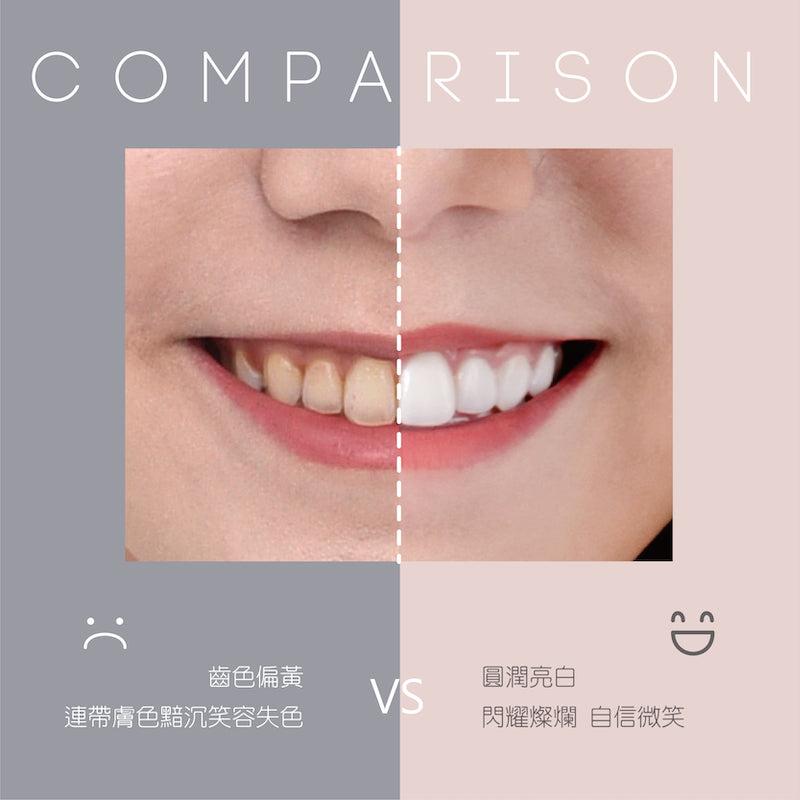 陶瓷貼片-磨牙-美齒貼片-牙齒美白前後比較-吳國綸醫師-台中