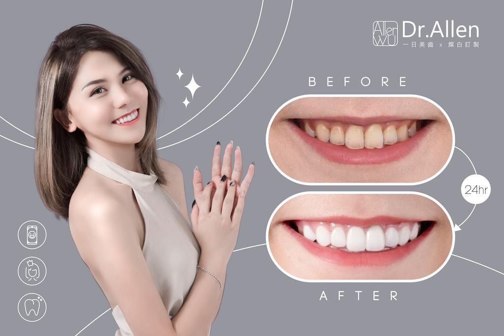 陶瓷貼片-磨牙-美齒貼片-牙齒美白推薦-吳國綸醫師