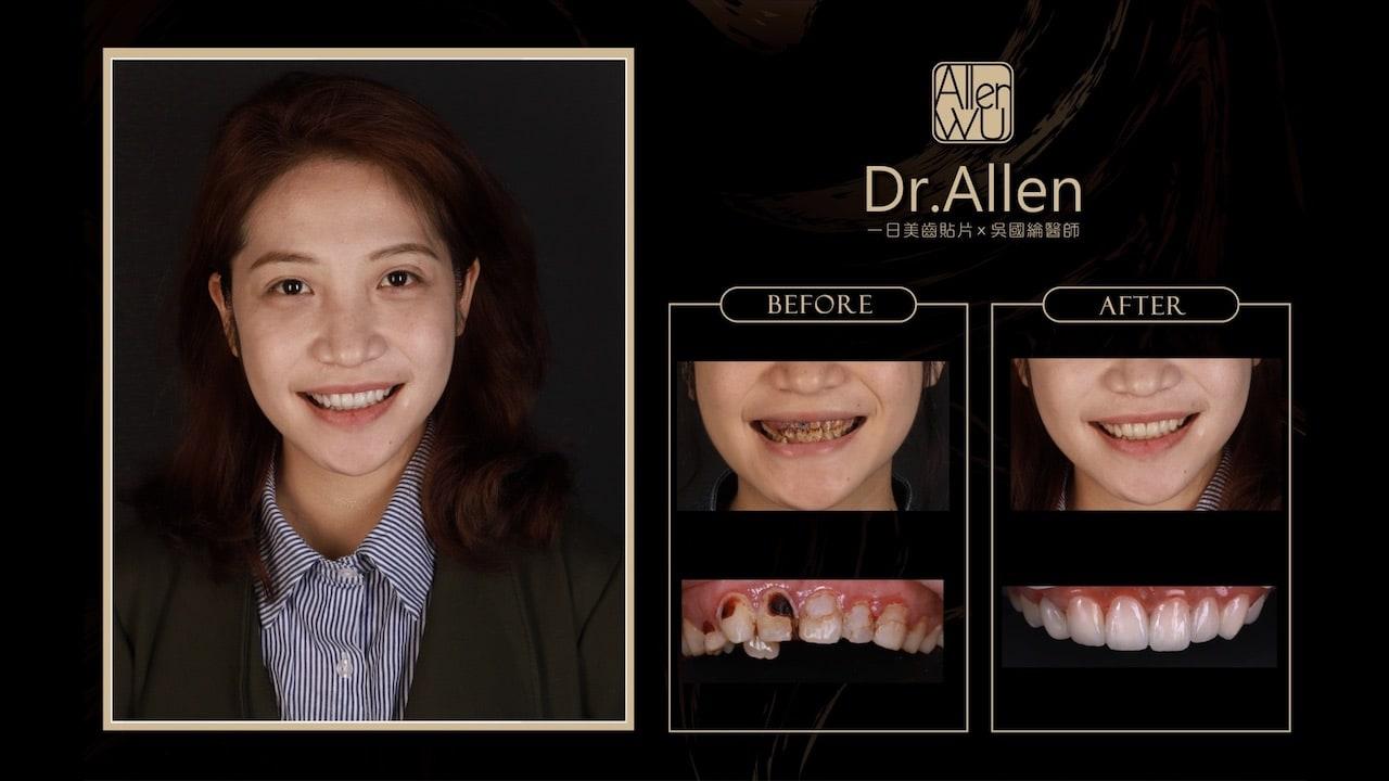 全瓷冠瓷牙貼片心得-噴砂美白-微創牙齦整型-牙齒美白貼片推薦牙醫-吳國綸醫師-朱小姐