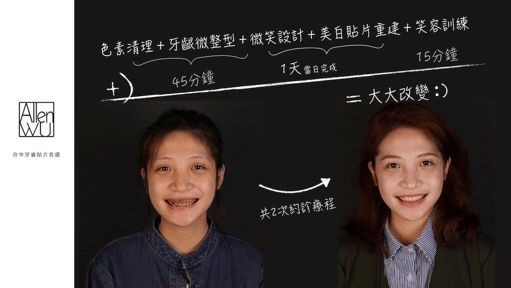 台中牙齒美白貼片-吳國綸醫師推薦-朱小姐