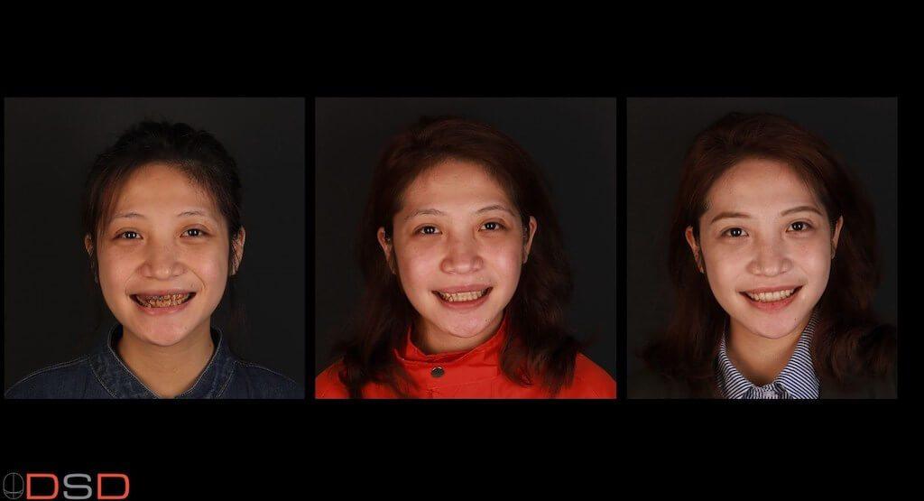 朱小姐個月內完成噴砂美白-微創牙齦整型-前牙美觀區一日數位全瓷冠美齒重建-三階段比較圖