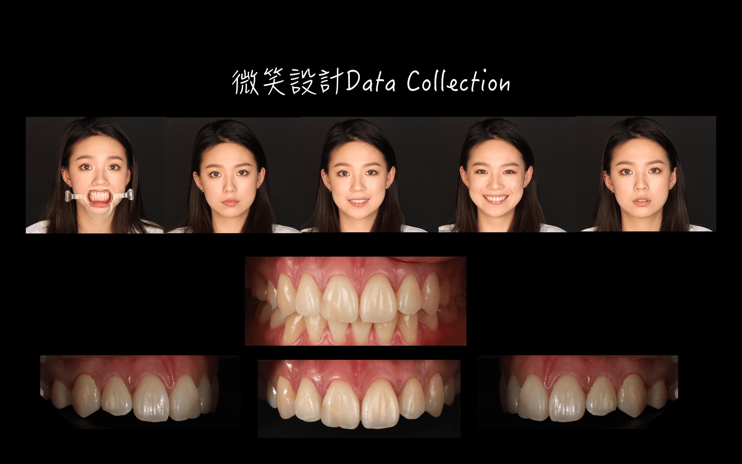 DSD微笑設計-微笑分析-一日美齒-推薦-吳國綸醫師-台中