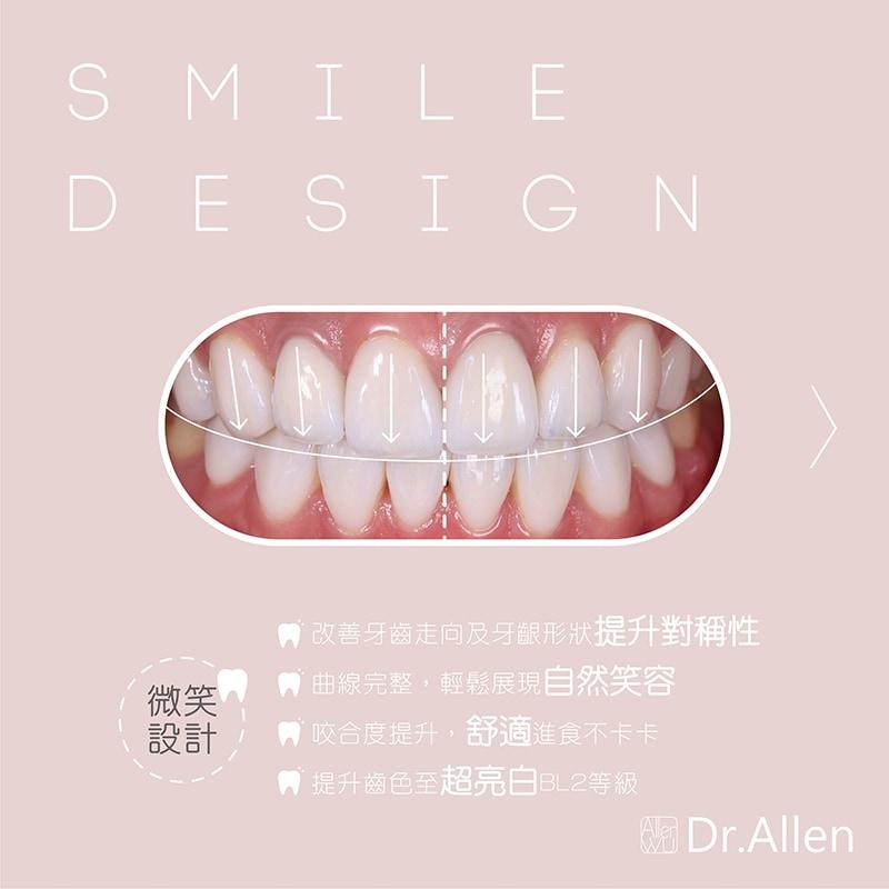 台中全瓷冠美白-美齒貼片案例-牙齒美白-DSD數位微笑設計