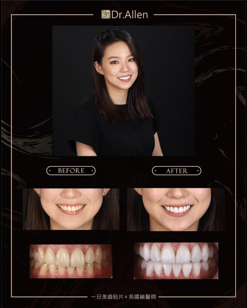 瓷牙貼片-DSD數位微笑設計-全瓷冠牙齒貼片推薦吳國綸醫師-網美人氣正妹牙齒美白心得