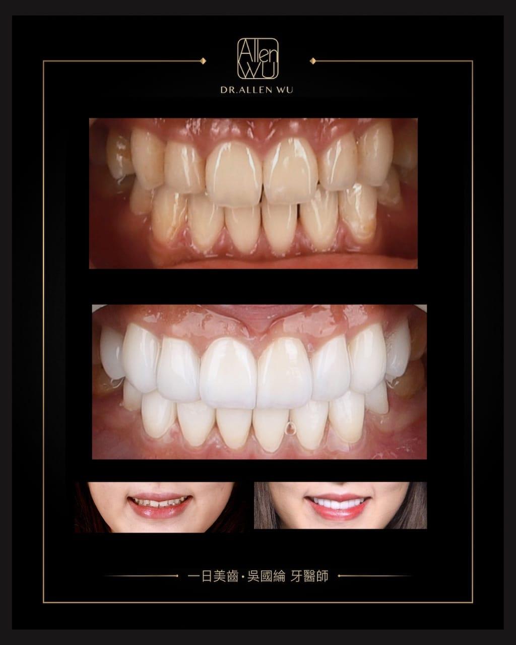 瓷牙貼片-DSD數位微笑設計-牙齒唇形-陶瓷貼片前後比較-牙齒美白貼片推薦專家-台中-吳國綸醫師