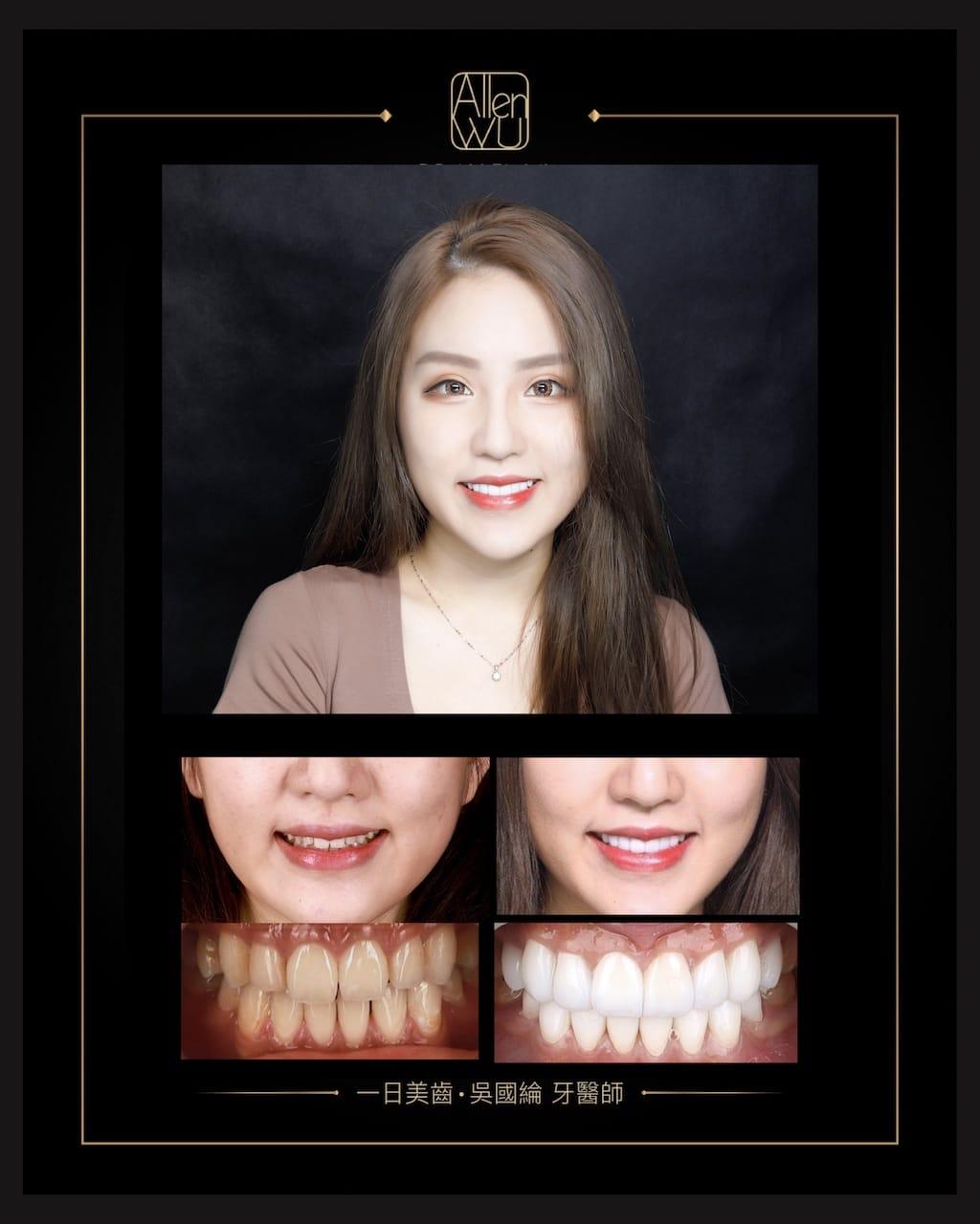 瓷牙貼片 DSD數位微笑設計-最好印象-對比照-吳國綸醫師-牙齒美白貼片推薦專家-台中