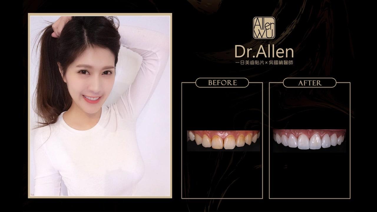 陶瓷貼片心得-牙齒黃-台中牙齒美白貼片推薦牙醫-吳國綸醫師-網紅doris